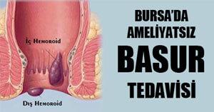 Hemoroid Tedavisi Ameliyatsız Yöntemlerle Yapılıyor